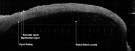 An OCT image of a fluid filled vesicle of the lower lip
