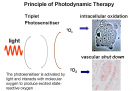 Principal of photodynamic therapy