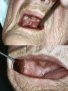 PDT-premalignant/malignant lesions