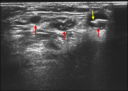 Ultrasound image showing 3 level II metastatic cervical lymph nodes