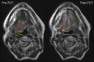 Pre- and Post-PDT MRI of base of tongue squamous cell carcinoma