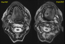 Pre- and Post-PDT MRI of the right posterior-lateral and base of tongue squamous cell carcinoma
