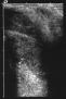 Ultrasound image showing needle insertion in the haemangioma