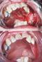 PDT-malignant lesion