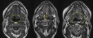 MRI Guided interstitial photodynamic therapy